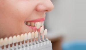 Zubnoe-protezirovanie