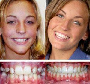 Cовременные стоматологические методики