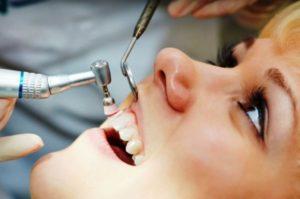 Удаление зубного камня недорого в стоматологической клинике Medivel