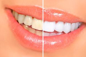 Отбеливание зубов Химки