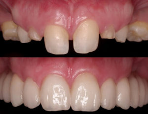 Стоматологическая реставрация зубов недорого в Химках