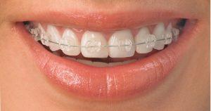 Konsul'taciya ortodonta
