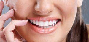 Улыбка после чистки зубов в стоматологии