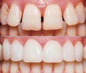 Услуги эстетической реставрации зубов недорого в стоматологической клинике Medivel.