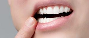 """Установка штифта на зуб стоматологическом отделении """"Medivel"""""""